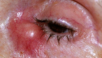 Acute dacryocystitis left eye with swollen tender lacrimal sac abscess