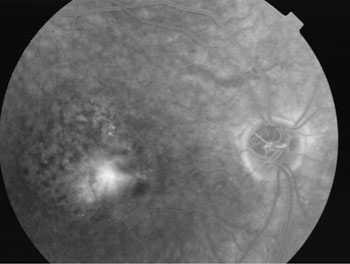 Same patient following Fluorescein angiography. There is bright abnormal leakage of dye in the macular area making it easier to diagnose wet AMD.