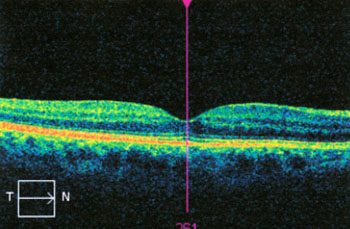 Normal OCT. The macular area is the thinnest part of the retina (purple line cuts through the centre of the macular).
