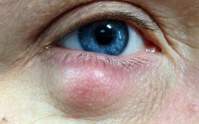 Chalazion right lower lid