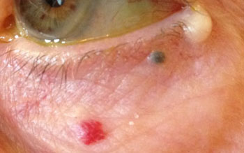 Multiple benign lesions from lid margin down: cyst of Moll, blue naevus and red haemangioma