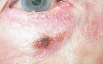 Benign lentigo maligna below right lower lid; may become malignant if left untreated