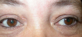 Patient following laser treatment  for xanthelasma deposits in both upper lids