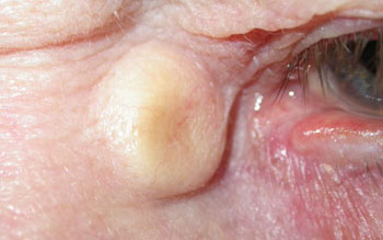 Sebaceous cyst inner corner of left eye