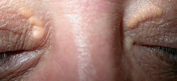 Benign xanthelasma (fatty deposits) upper lids which can be treated with surgery or laser