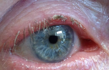 Anterior blepharitis with crusts and scale around the eyelashes on the lid margin
