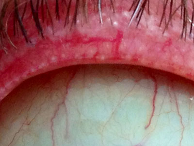 Posterior blepharitis with inflammation of the eyelid margin and blockage of the meibomian oily glands