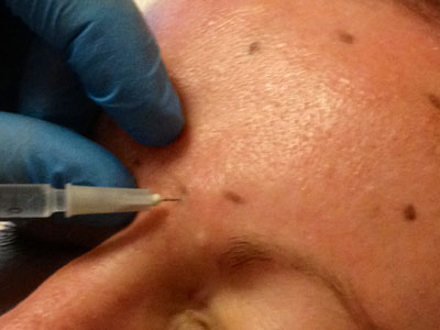 Botox is carefully injected into target muscles using a fine needle