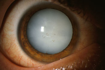 Dense white mature cataract completely blocking the red reflex
