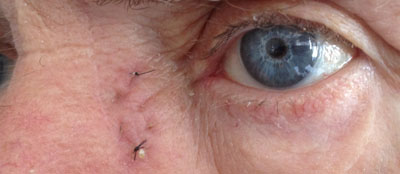 Small scar on the left side of the nose 5 days following an external DCR