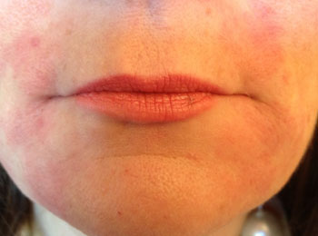 Same patient immediately after restylane filler to lift the corner of the mouth