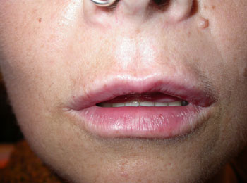 Same patient immediately after filler to enhance lips (using a local anaesthetic dental block)