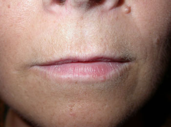 Relatively thin upper lip in a 36yr old lady