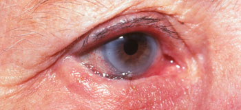 Right lower lid entropion, eyelashes rubbing against the eye surface.