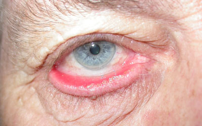 Right lower lid ectropion caused by laxity