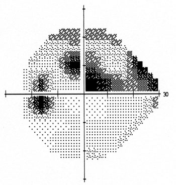 Abnormal visual field in left eye secondary to glaucoma. There is a loss of peripheral vision above (grey-black shaded area) and an abnormally large blind spot on the left side.