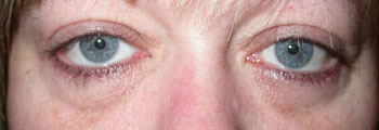 Same patient following a transcutaneous lower lid blepharoplasty
