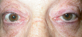 Same patient after surgical procedure to lower the left upper lid
