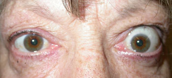 Prominent left eye due to thyroid eye disease