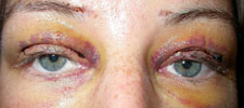 One week following bilateral surgery using fine strips of connective tissue (obtained from the leg) to connect the upper lids to the forehead muscle (known as a frontalis brow suspension)