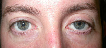 Left upper lid ptosis before surgery