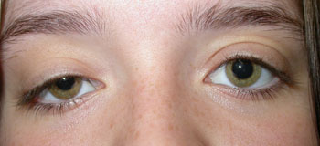 Right upper lid ptosis before surgery