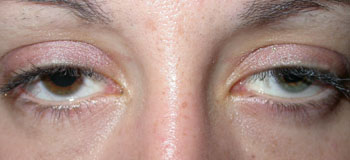 Right and left upper lid ptosis