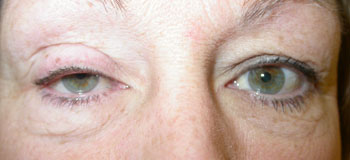Right upper lid ptosis