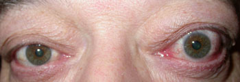 Bulgy red left eye due to thyroid eye disease