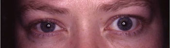 Exposed left eye due to thyroid eye disease