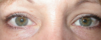 Same patient 1 month after upper lid blepharoplasty