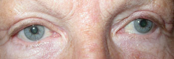 Same patient 2 weeks after upper lid blepharoplasty
