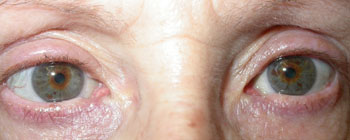 "Same patient 3 weeks after an upper eyelid ""lift"""