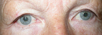 Excess skin in upper lids resting on eyelashes