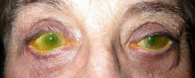 Watery eyes right>left secondary to lax lower lids (tear film stained green using a dye)